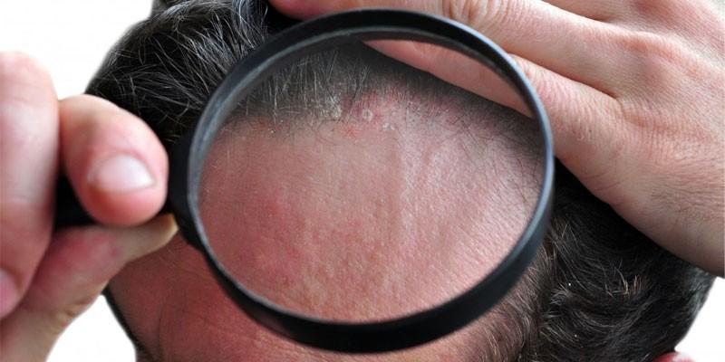 Проявления заболевания на волосистой части головы