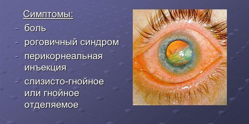 Симптомы язвы роговицы
