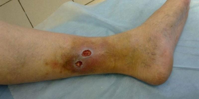 Трофические язвы на ноге