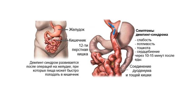 Симптомы демпинг-синдрома