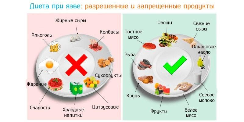 Разрешенные и запрещенные продукты при язве