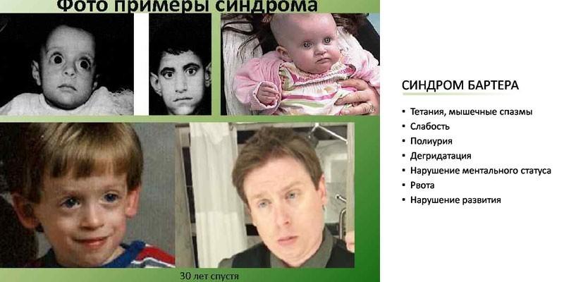 Синдром Барттера и примеры фото