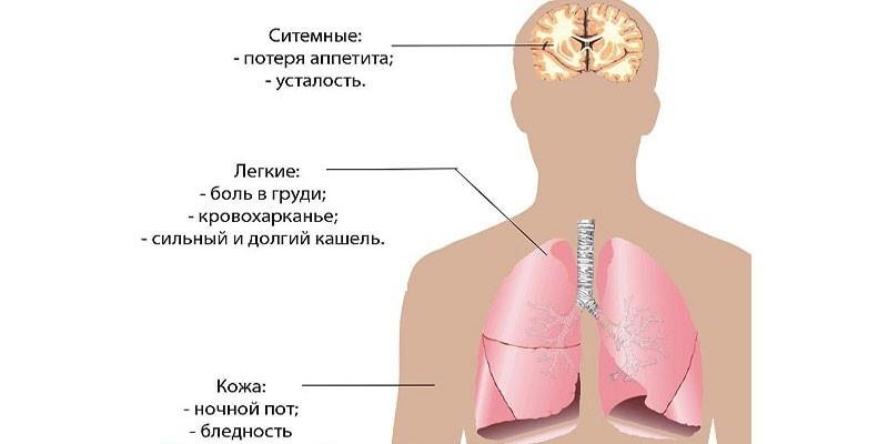 Симптомы открытой формы туберкулеза