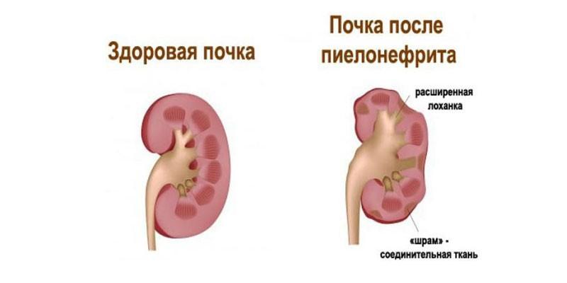 Здоровая почка и почка после пиелонефрита