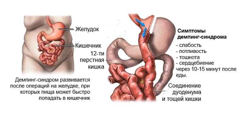 Характерные симптомы