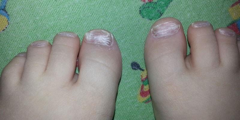 Грибок ногтей на ногах у малыша