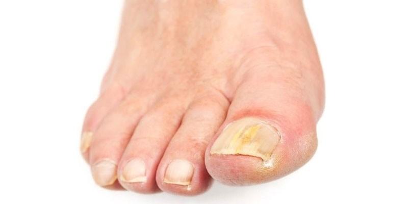 Действенное народное средство грибка ногтей