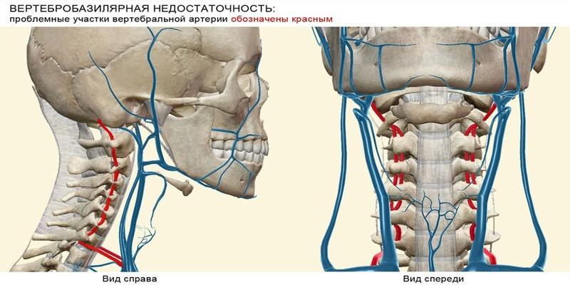 Синдром вертебробазилярной артериальной системы код по МКБ 10