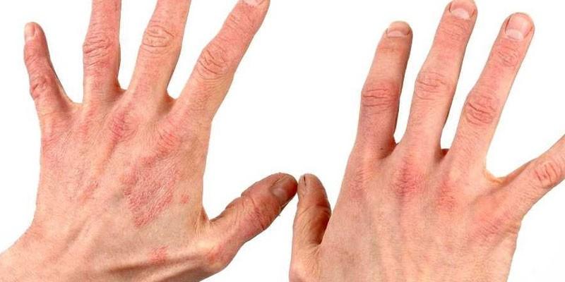 Народные средства от псориаза - пошаговые инструкции для домашнего лечения