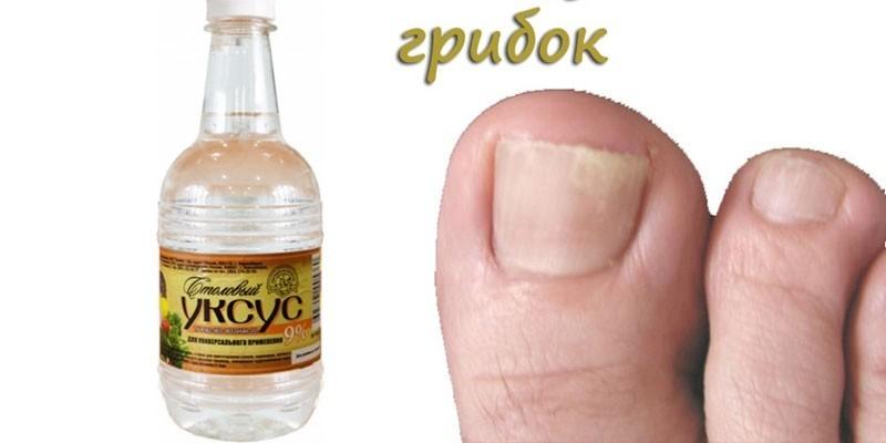 Уксус против грибка ногтей