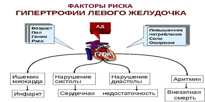Последствия гипертрофии левого желудочка