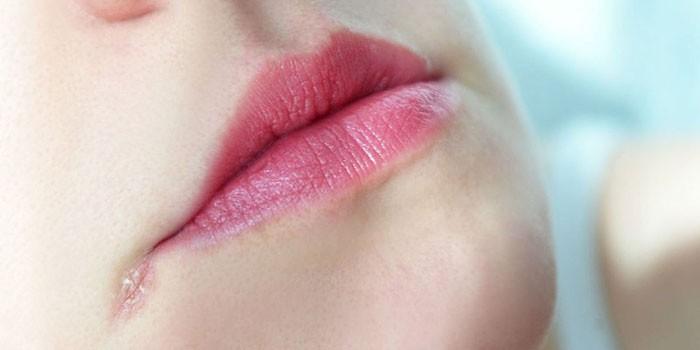 Трещина около губ