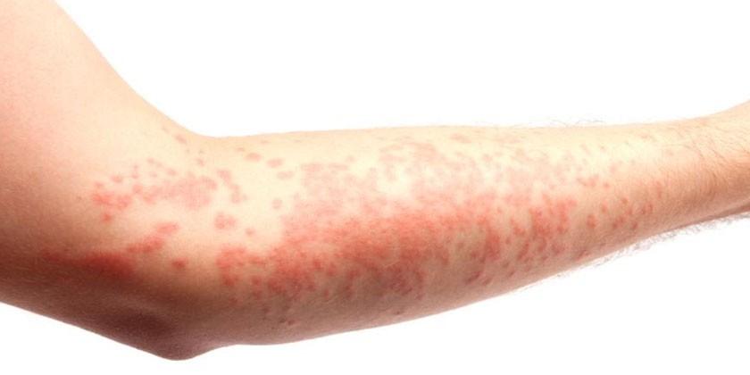 Проявления крапивницы на коже руки