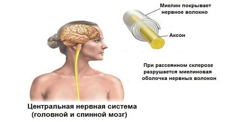 Схема нарушений оболочки нервных волокон