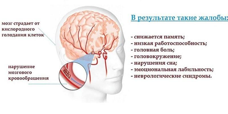 Схема и симптомы энцефалопатии