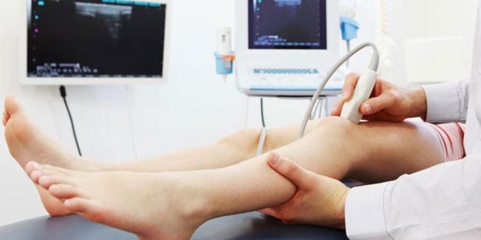 УЗИ сосудов нижних конечностей - показания к исследованию, как проводят диагностику и что показывает