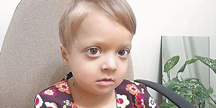 Мраморная болезнь у ребенка