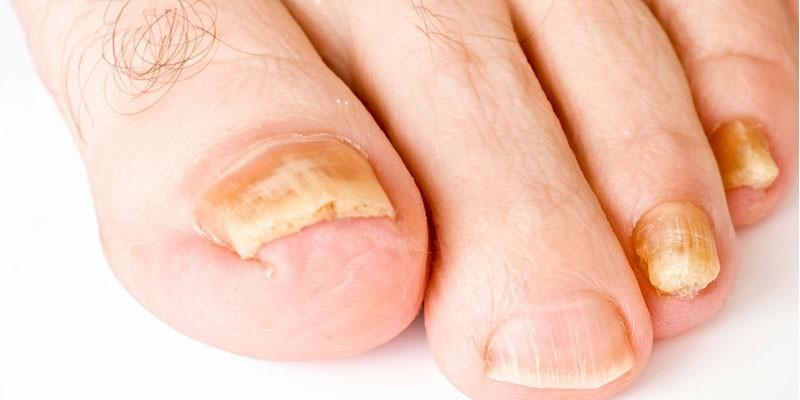 Больные ногти на ноге