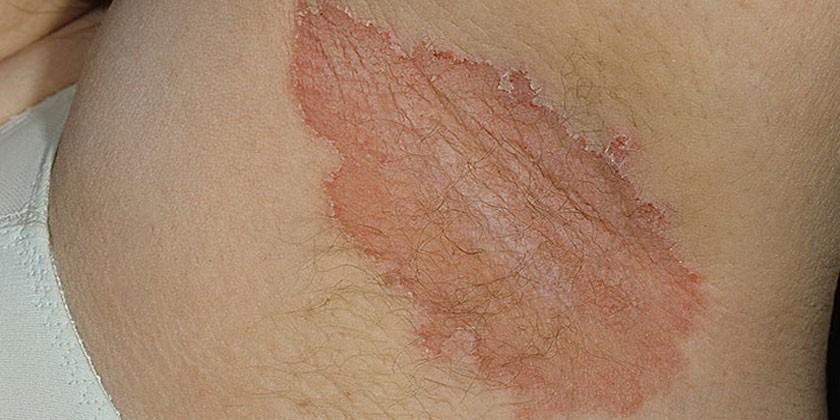 Кандидоз складок кожи