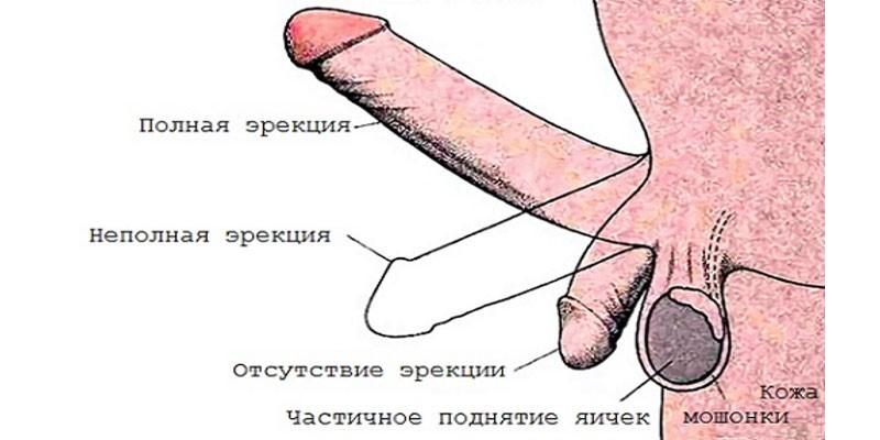 Проявления неполной эрекции