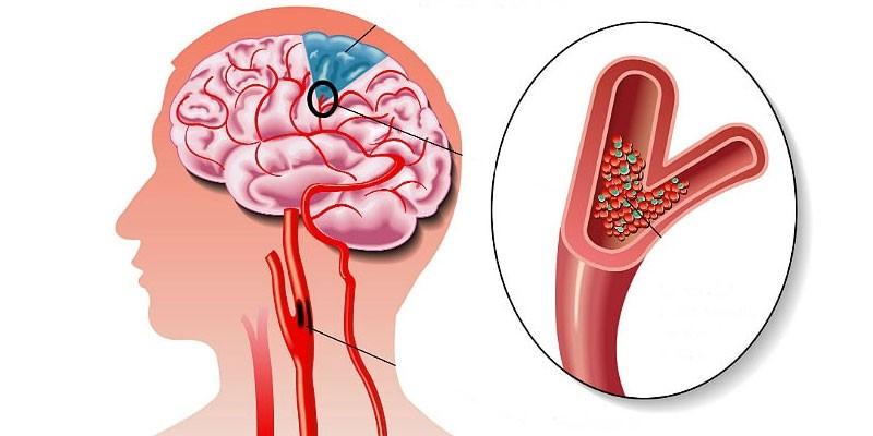 Тромбоз сосуда головного мозга