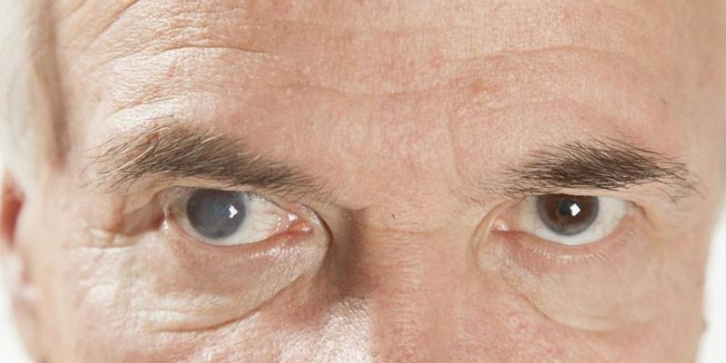 Мужчина с катарактой глаз