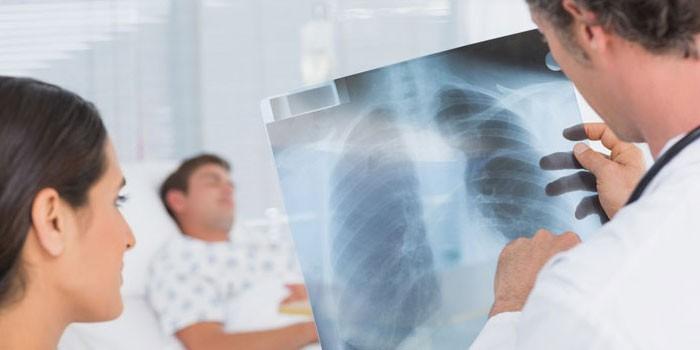 Медики рассматривают рентгеновский снимок