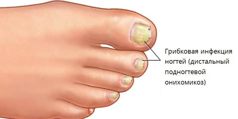 Разновидности инфекции