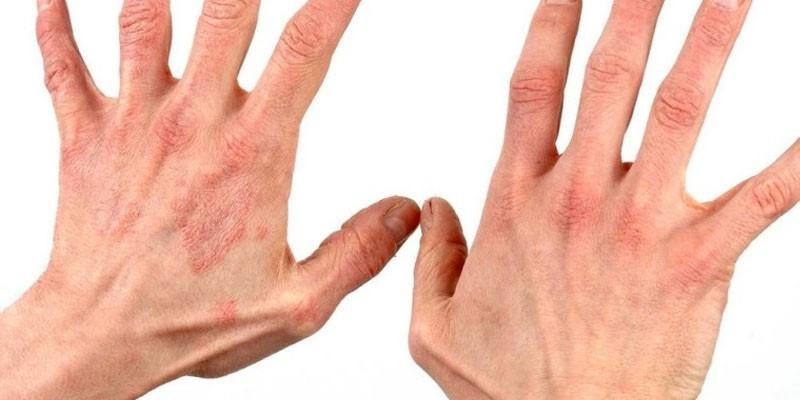 Пораженные руки