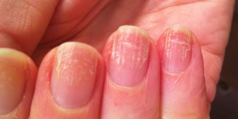 Руброфития ногтей