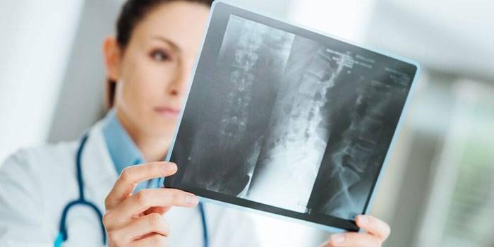 Вач изучает рентгеновский снимок