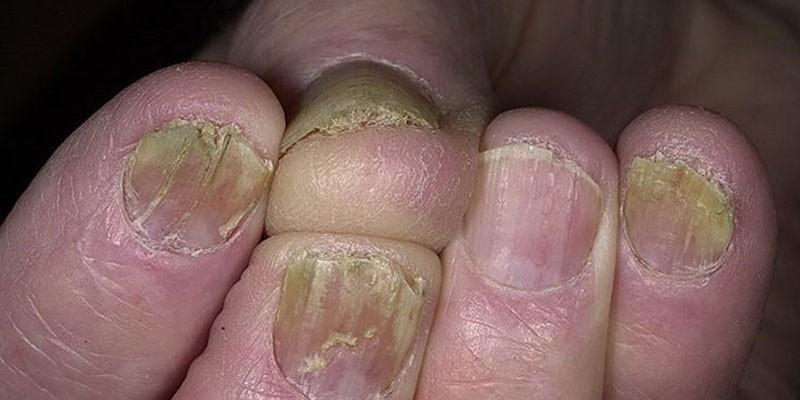 Как определить тип грибка на ногтях ног