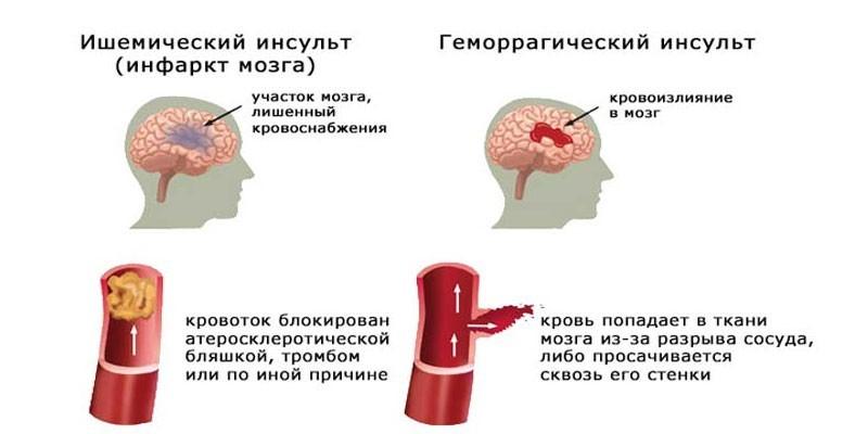 Отличия инсульта от микроинсульта