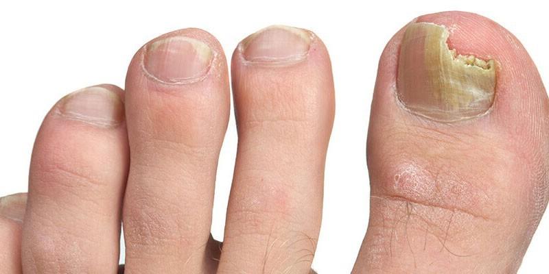 Грибок ногтей название заболевания 19