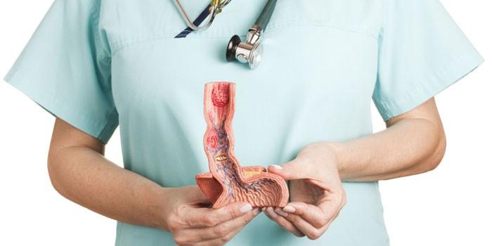 Медик с макетом пищевода в руках
