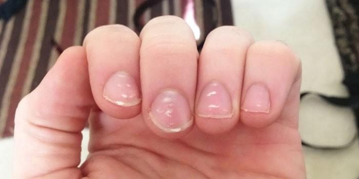 Белые точки на ногтях руки