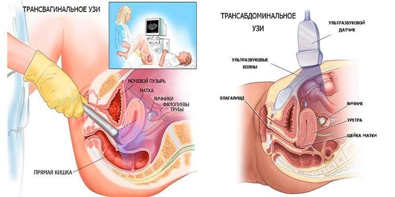 Виды УЗИ для определения беременности
