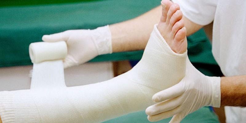 Наложение гипсовой повязки при переломе стопы