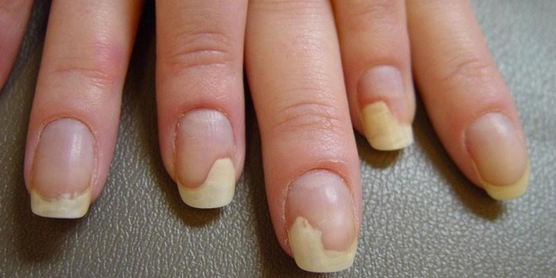 Грибковое поражение ногтей на руках