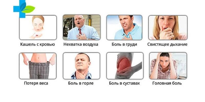 Признаки туберкулеза легких