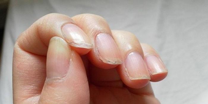 У женщины слоятся ногти