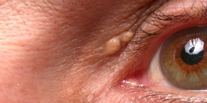 Ксантелазм на глазу у человека