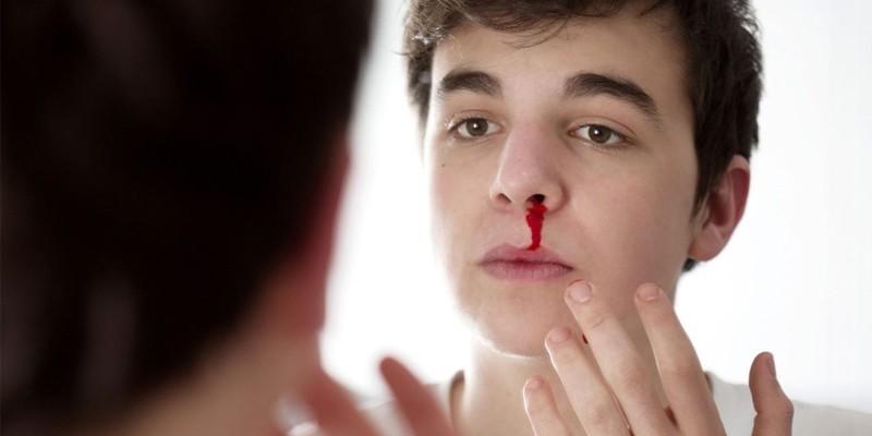 У парня кровь из носа