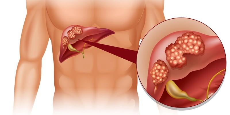 Вторичный билиарный цирроз
