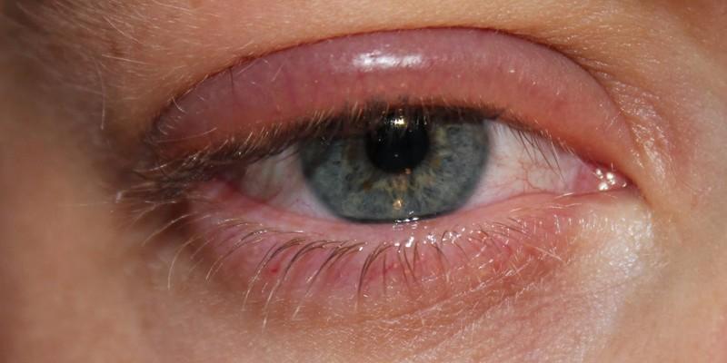 Отечность глаза