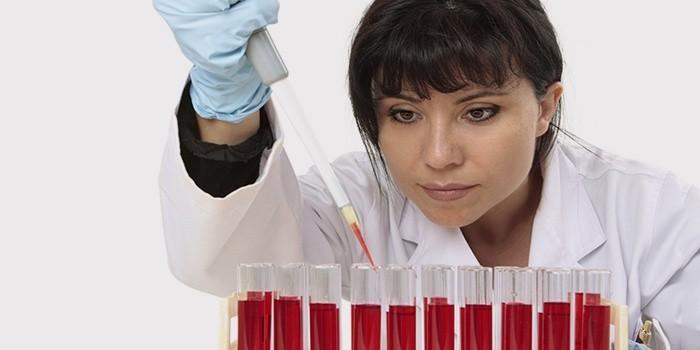 Лаборант проводит анализ крови