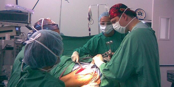 Бригада хирургов на операции