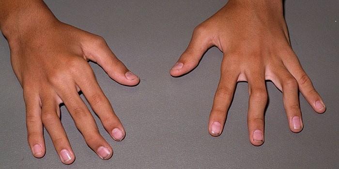 Деформация суставов на пальцах рук при артрите