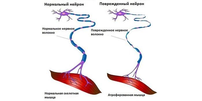 Нормальный и поврежденный нейрон