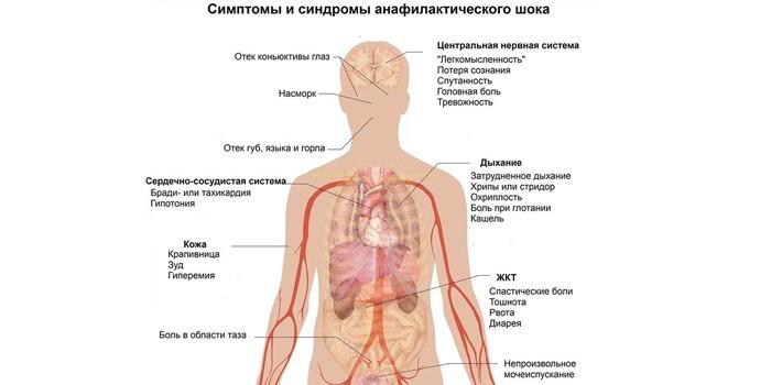 Синдромы и симптомы анафилактического шока